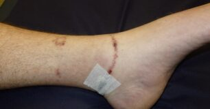 Image of an injury from cuffs on a leg